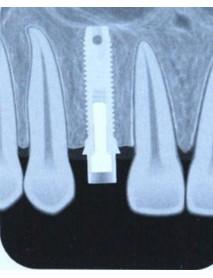 RIOScan  Fosfor Plak Tarama cihazı