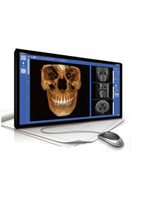 LARGEV   HİRES3D  CT TOMOGRAFİ + Panoramik + Sefolametrik   FOV   16X15