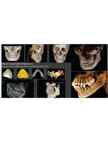 POINT COMBI 500 S   3D + PANORAMİK   ( FOV 16X15 )