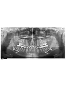 RAYSCAN  Dijital  Panoramik Röntgen Cihazı
